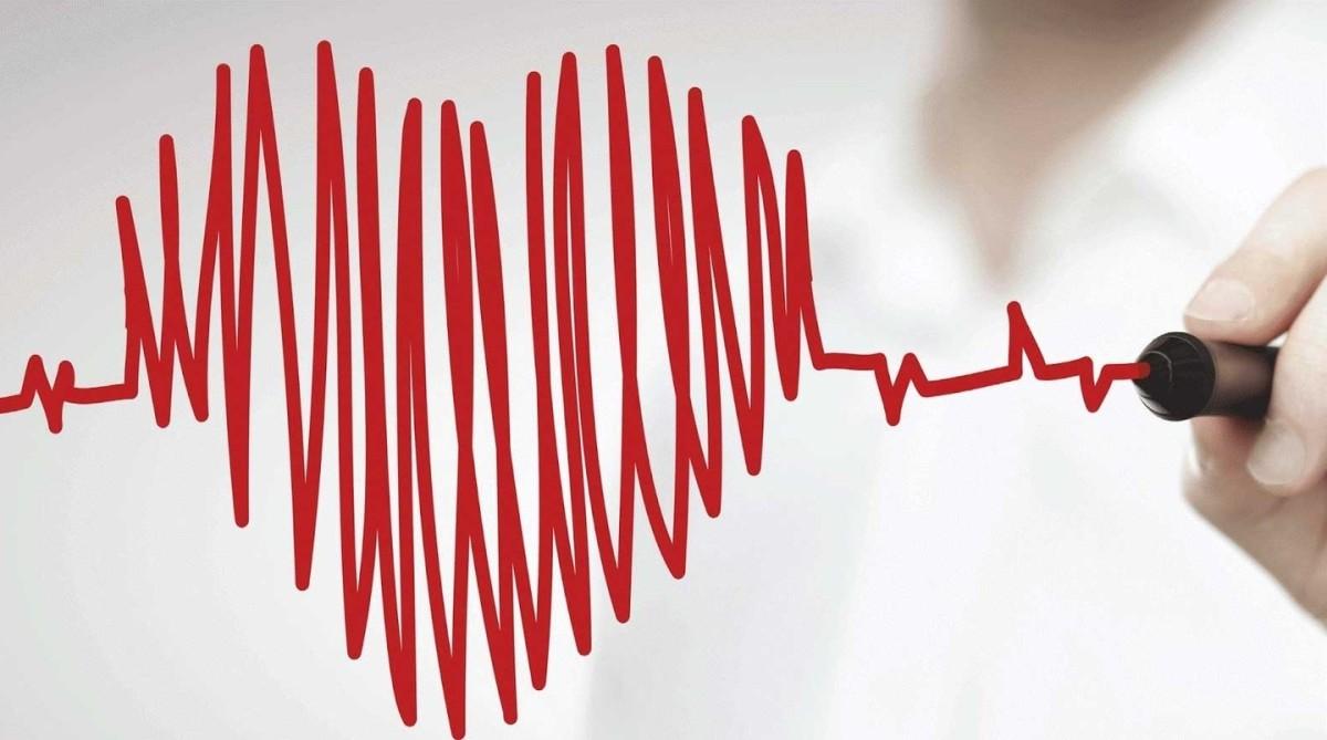 Caso clínico: Al borde del infarto